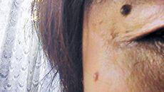 ほくろ・いぼ・盛り上がったシミ(脂漏性角化症)
