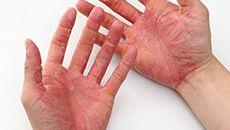 手荒れ・手湿疹