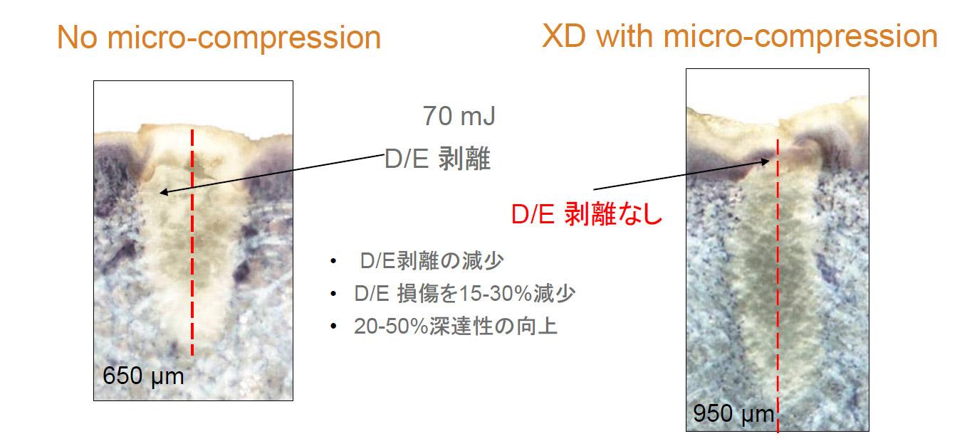 XDレンズの損傷の緩和と深達度